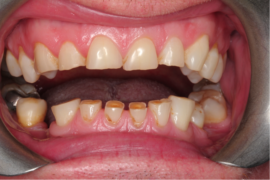 Occlusal Corrections Ctl Dental