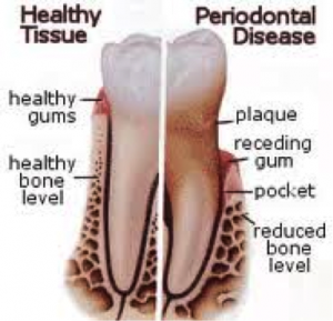 Periodontal Treatment Image