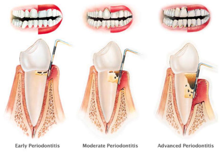Periodontal Treatment Ctl Dental