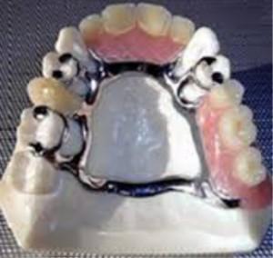 ctl_dentures_pic2