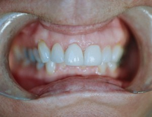 ctl_veneers_example1_after