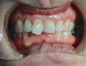 ctl_veneers_example1_before