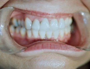 ctl_veneers_example2_after