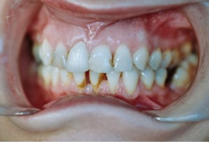 ctl_veneers_example2_before