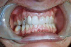dental_bridge_after