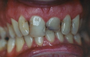 dental_bridge_before