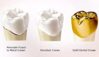 How Much Is A Crown >> Crowns And Bridgework Ctl Dental