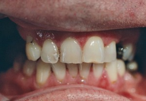 denture_case2_before