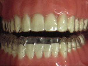 Invisible Orthodontics Image