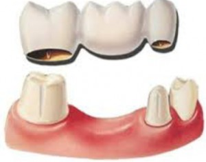 resin_dental_bridge