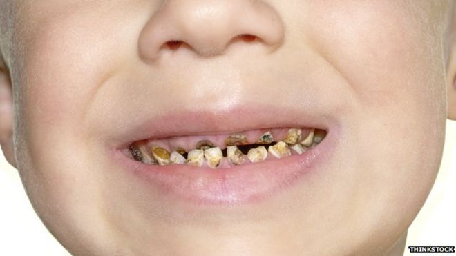 Childs tooth
